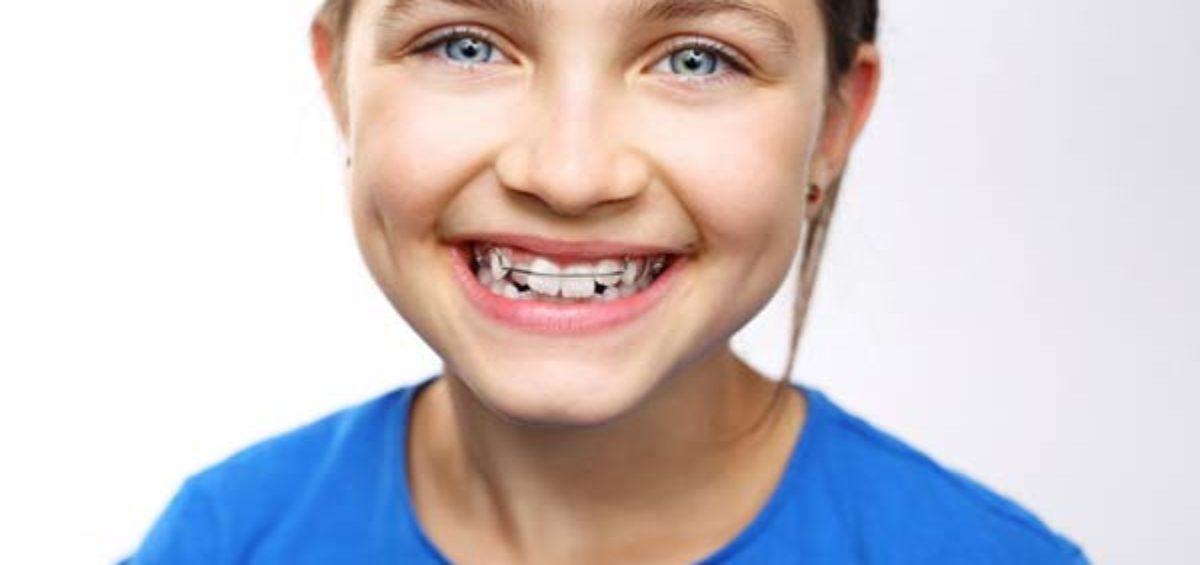 Apparecchio denti bambini a Ghisalba - Bergamo