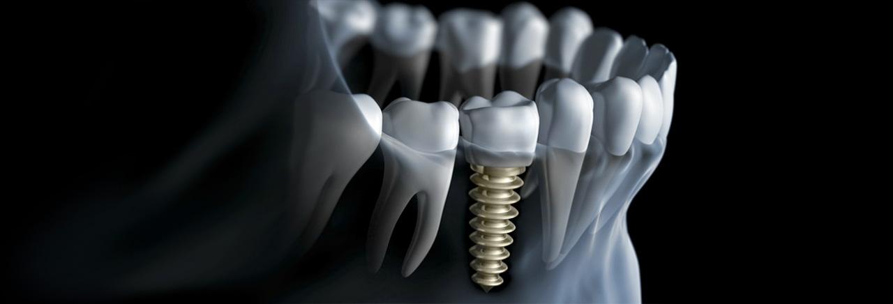 Implantologia | Dentista Ghisalba